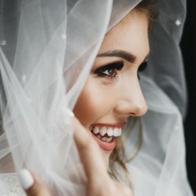 Cómo lucir una sonrisa perfecta en tu día D